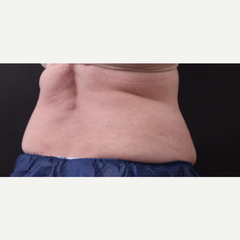 62 year old woman treated with CoolSculpting before 3221075