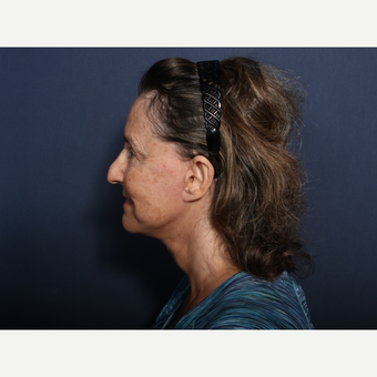 65-74 year old woman treated with Neck Lift (view 2 of 2) after 3260058