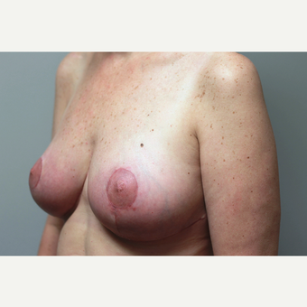 35-44 year old woman treated with Breast Reduction after 3652308