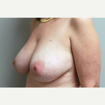 35-44 year old woman treated with Breast Reduction before 3652308