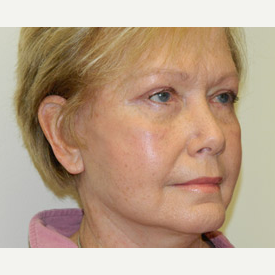 55-64 year old woman treated with Mini Lift and 4-Lid Blepharoplasty after 3264923