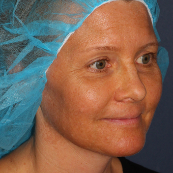 42 year old woman treated with Fraxel Dual  Laser for melasma one time before 3616947