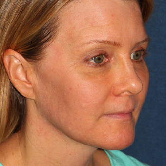 42 year old woman treated with Fraxel Dual  Laser for melasma one time after 3616947