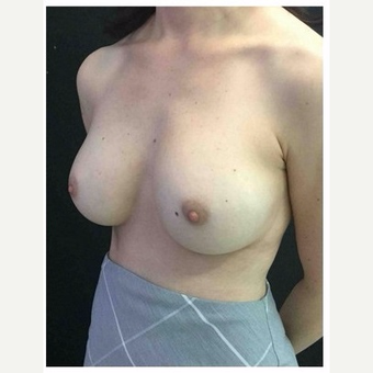 35-44 year old woman treated with Breast Implants after 3103462