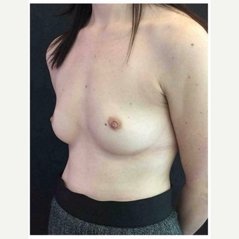 35-44 year old woman treated with Breast Implants before 3103462