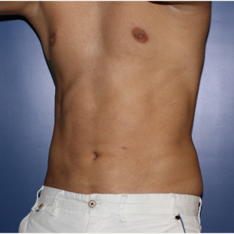 25-34 year old man treated with Liposculpture after 3694934