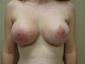 Prophylactic Breast Reconstruction after 1032134