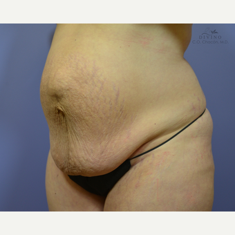 35-44 year old woman treated with Weight Loss before 3329187