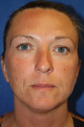 Botox and Juvederm before 1412860