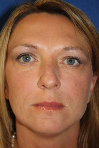 Botox and Juvederm after 1412860