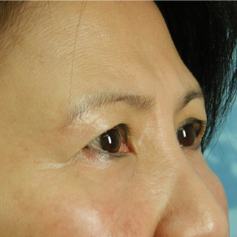 Eyelid Surgery before 3126897