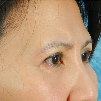 Eyelid Surgery after 3126897