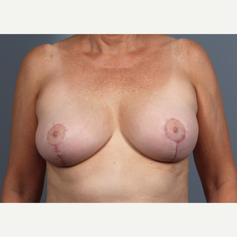 55-64 year old woman treated with Breast Lift after 3412521