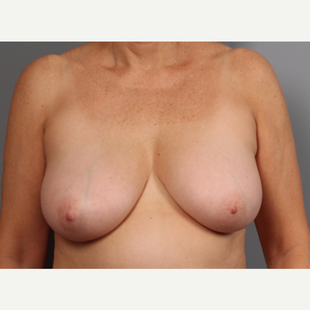 55-64 year old woman treated with Breast Lift before 3412521