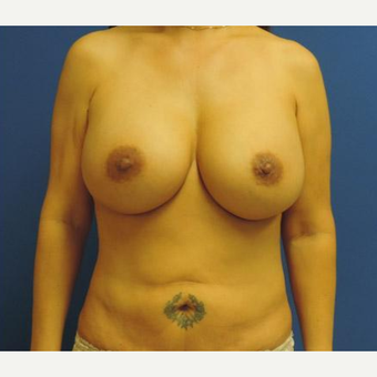 Breast Augmentation after 3206516