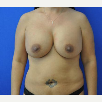 Breast Augmentation before 3206516