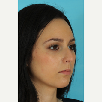 18-24 year old woman treated with Rhinoplasty before 3618437