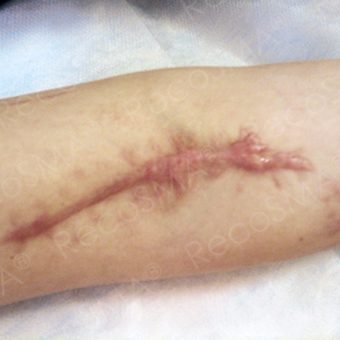 25-34 year old man treated with Scars Treatment before 3499142