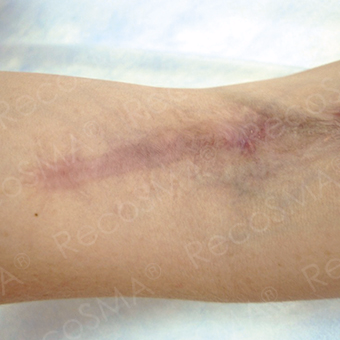 25-34 year old man treated with Scars Treatment after 3499142