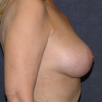 45-54 year old woman treated with Breast Lift after 3538713