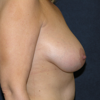45-54 year old woman treated with Breast Lift before 3538713