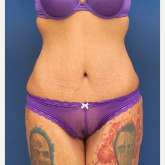 31 year old female, 100 pound weight loss with diet and exercise, had an abdominoplasty (tummy tuck) after 3814747