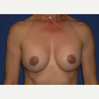 45-54 year old woman treated with Breast Augmentation after 3220042