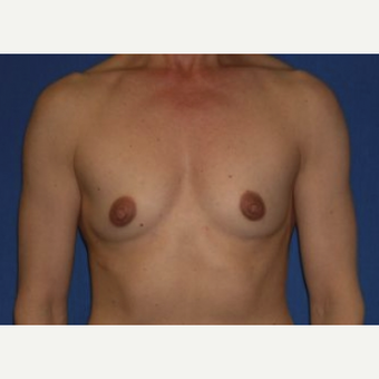 45-54 year old woman treated with Breast Augmentation before 3220042