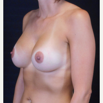 35-44 year old woman treated with Breast Augmentation after 3525925