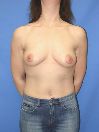 46 year old breast augmentation patient before 1163497