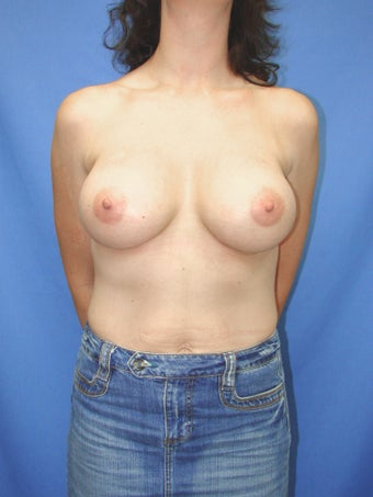 46 year old breast augmentation patient after 1163497