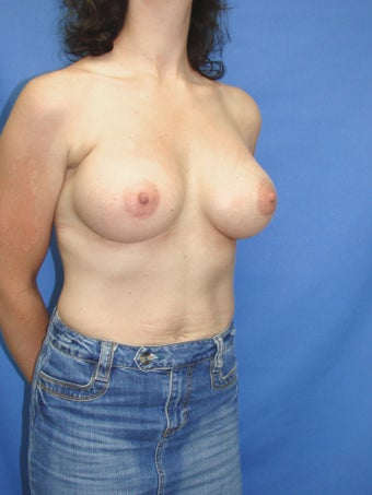 46 year old breast augmentation patient 1163497