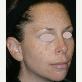 25-34 year old woman treated with multiple IPL treatments before 3089392