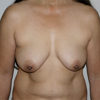 55-64 year old woman treated with Breast Lift with Implants before 3191568