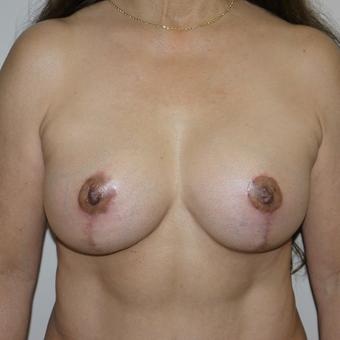 55-64 year old woman treated with Breast Lift with Implants after 3191568