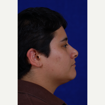25-34 year old woman treated with Rhinoplasty after 3439162