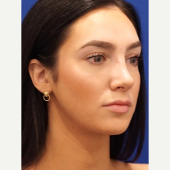 25-34 year old woman treated with Rhinoplasty after 3034401
