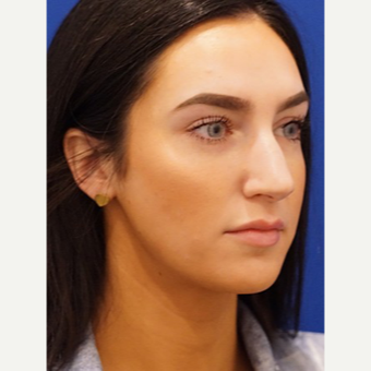 25-34 year old woman treated with Rhinoplasty before 3034401