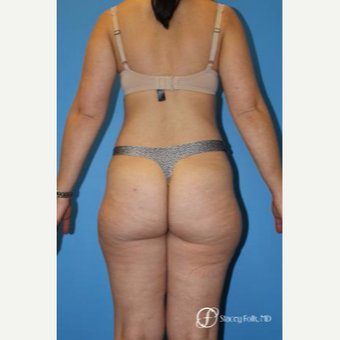 35-44 year old woman treated with Liposuction before 3304809