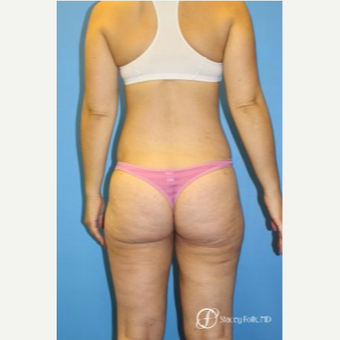 35-44 year old woman treated with Liposuction after 3304809