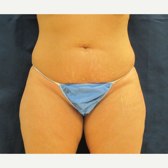 35-44 year old woman treated with Tummy Tuck before 3301303