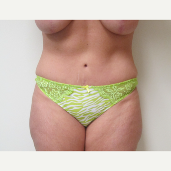 35-44 year old woman treated with Tummy Tuck after 3301303