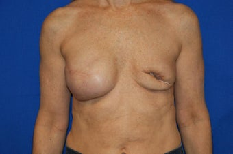 fat transfer to breast in 53 year old female before 1188987