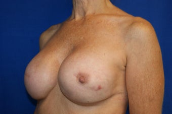 fat transfer to breast in 53 year old female 1188987