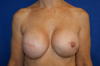 fat transfer to breast in 53 year old female after 1188987