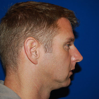 Chin Augmentation before 1284431
