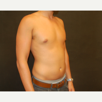 25-34 year old man treated with Male Breast Reduction after 3180933