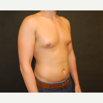 25-34 year old man treated with Male Breast Reduction before 3180933