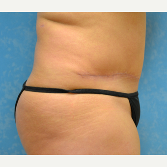 35-44 year old woman treated with Tummy Tuck after 3731945