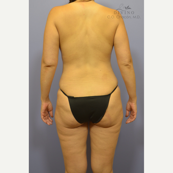35-44 year old woman treated with Weight Loss after 3418884